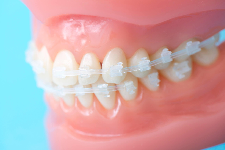 ママウスピース型矯正(歯科)装置を用いた矯正とワイヤー矯正の違い